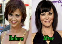 Catherine Bell Surgery Before After