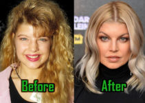 Fergie Plastic Surgery Photo