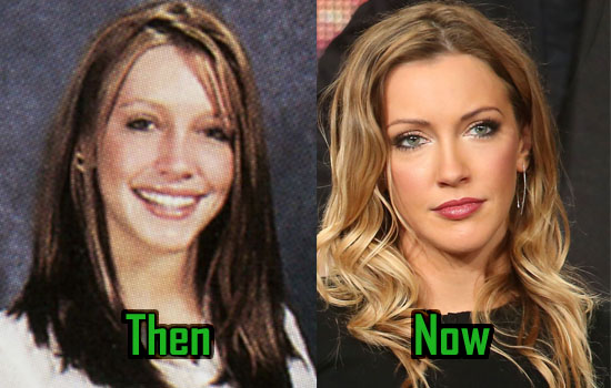 Katie Cassidy Plastic Surgery Is Too Obvious To Deny