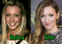 Katie Cassidy Surgery Photo, Before After