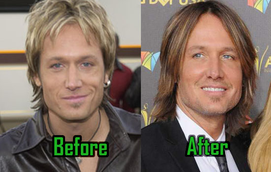 Male plastic surgery before and after celebrity pics