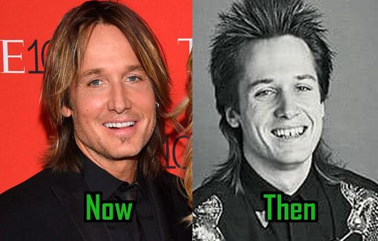 Keith Urban Facelift, Teeth