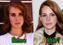 Lana Del Rey Plastic Surgery, Before After