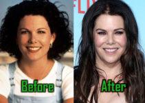 Lauren Graham Surgery, Botox