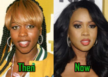 Remy Ma Cosmetic Surgery