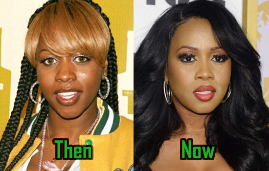 Remy Ma Plastic Surgery Is It Fact Or Rumor
