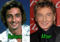 Barry Manilow Surgery