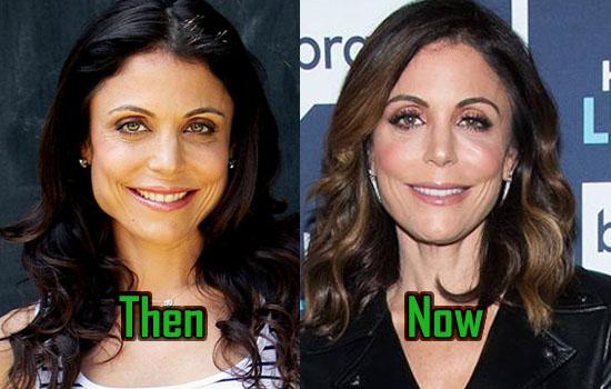 bethenny frankel plastic surgery  jaw reduction  u0026 facelift