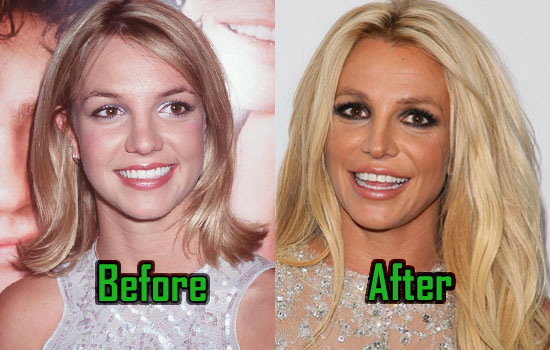 Britney Spears: Plastic Surgery Behind Her Unusual Look, Before ...