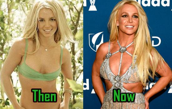 Britney Spears Surgery, Boob Job Photo