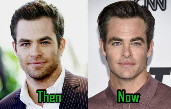 Chris Pine Before and After