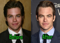 Chris Pine Plastic Surgery