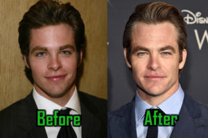 Chris Pine Plastic Surgery