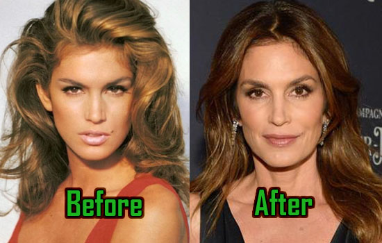 Cindy Crawford Plastic Surgery Is Her Beauty Secret
