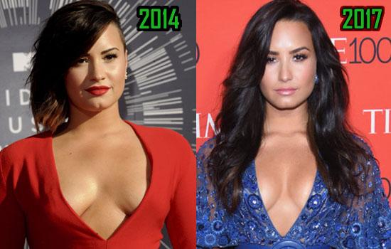 Demi Lovato Boob Job