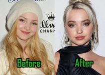 Dove Cameron Plastic Surgery