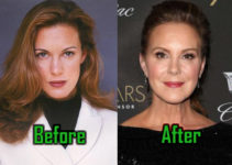 Elizabeth Perkins Plastic Surgery Photo