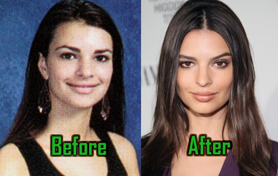 Emily Ratajkowski Plastic Surgery