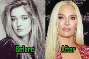 Erika Jayne Plastic Surgery