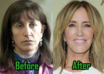 Felicity Huffman Plastic Surgery