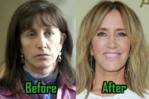CelebritySurgeryIcon – Page 16 – Celebrity Plastic Surgery
