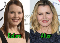 Geena Davis Plastic Surgery Photo