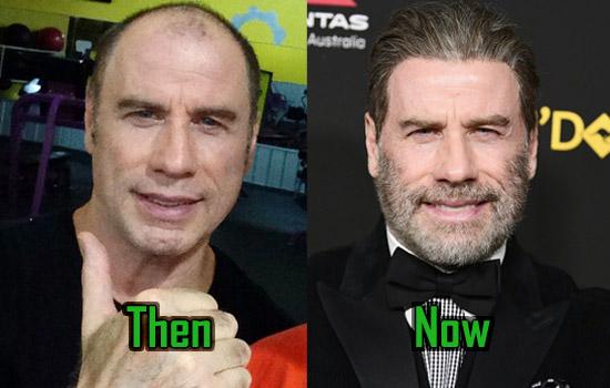 John Travolta Surgery, Hair Transplant