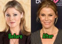 Julie Bowen Surgery, Before After Photo