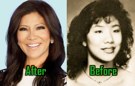 Julie Chen Plastic Surgery To Fight Racism Before After