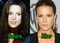 Kate Beckinsale Plasic Surgery