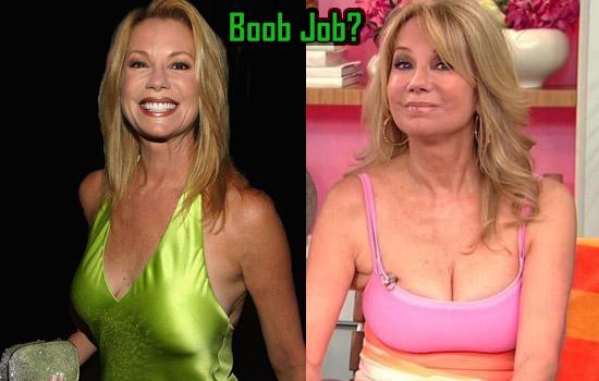 Kathie Lee Gifford Boob Surgery