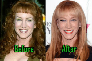 Kathy Griffin Plastic Surgery Photo