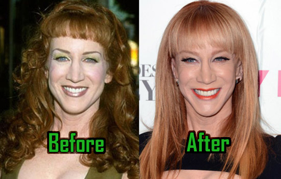 Kathy Griffin Plastic Surgery Photo