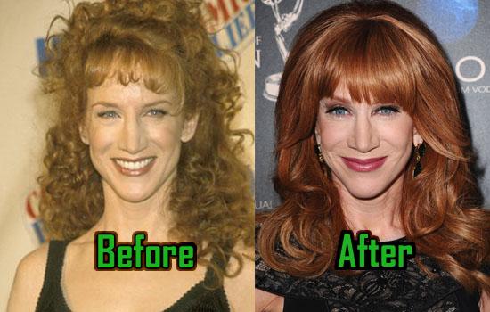 Kathy Griffin Surgery, Facelift