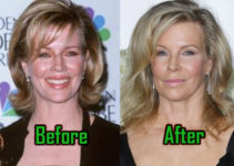 Kim Basinger Plastic Surgery, Before After