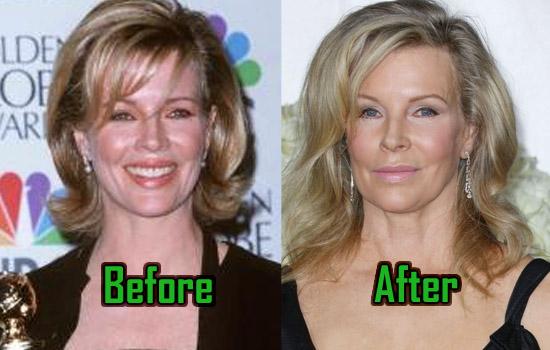 Kim Basinger Plastic Surgery: A Bad Decision? Before-After Photos   CelebritySurgeryIcon