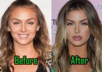 Lala Kent Plastic Surgery, Lips Injection