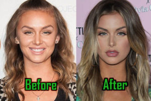 Lala Kent Plastic Surgery, Lips Injection