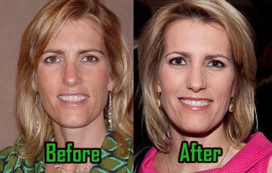 Laura Ingraham Facelift