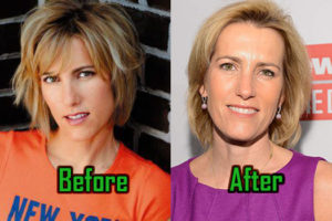 Laura Ingraham Plastic Surgery