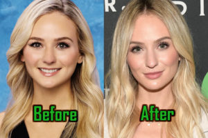 Lauren Bushnell Plastic Surgery