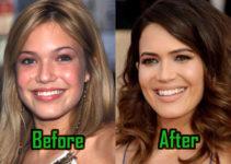 Mandy Moore Plastic Surgery