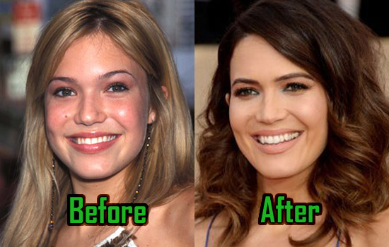 Mandy Moore Plastic Surgery Nose Job Rumor Before After