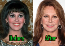 Marlo Thomas Plastic Surgery, Before After