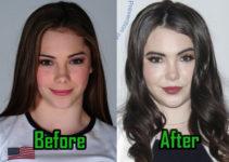 McKayla Maroney Plastic Surgery Photo