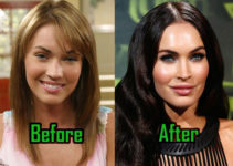 Megan Fox Plastic Surgery Photo