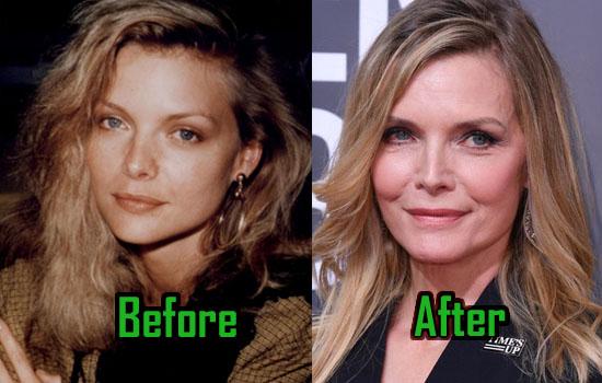 Michelle Pfeiffer Plastic Surgery