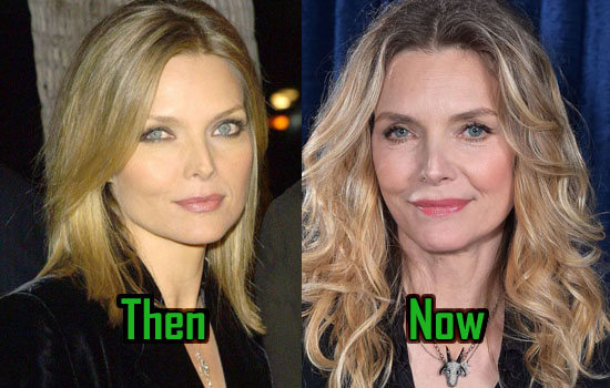 Michelle Pfeiffer before and after plastic surgery (34