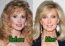 Morgan Fairchild Plastic Surgery Photo
