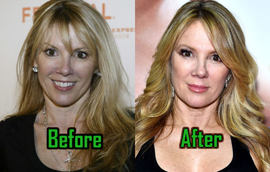 Ramona Singer Plastic Surgery